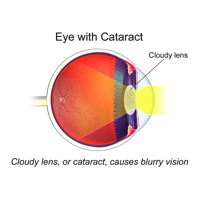Cataracts Treatment in Riverdale, NJ
