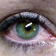 Dry Eyes Riverdale NJ